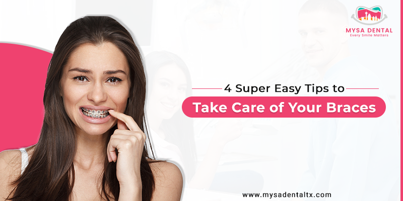 Super Easy Tips to Take Care of Your Braces