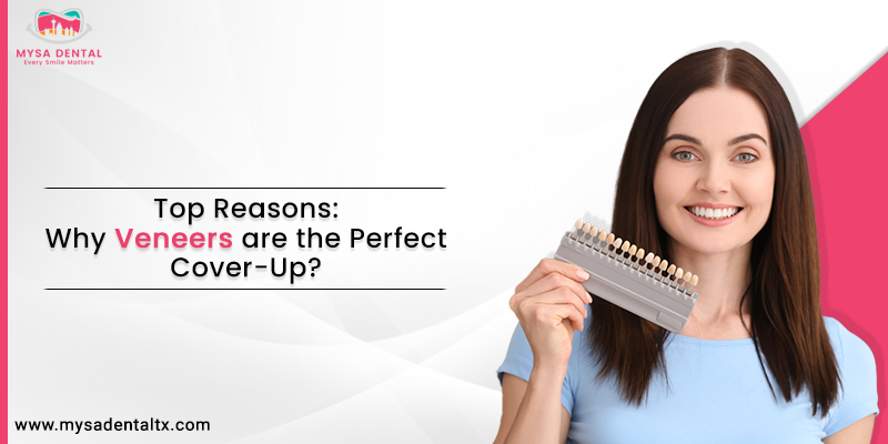 Veneers are the Perfect Cover-Up
